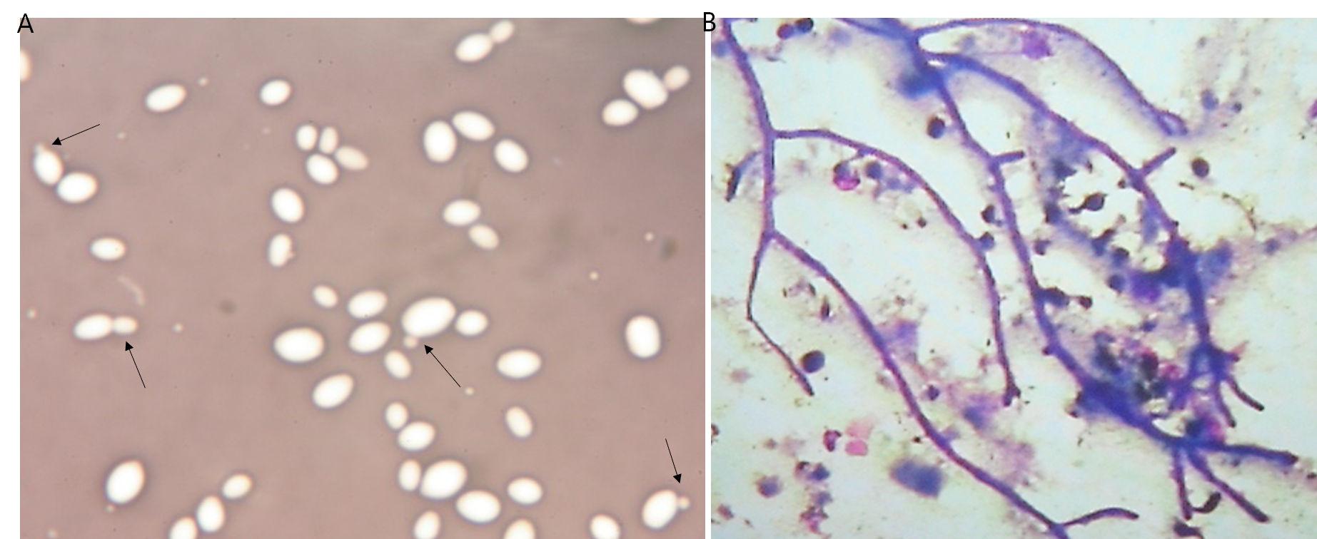 Gærsvamp og Endometritis hos hopper
